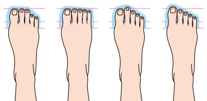 Formas del pie